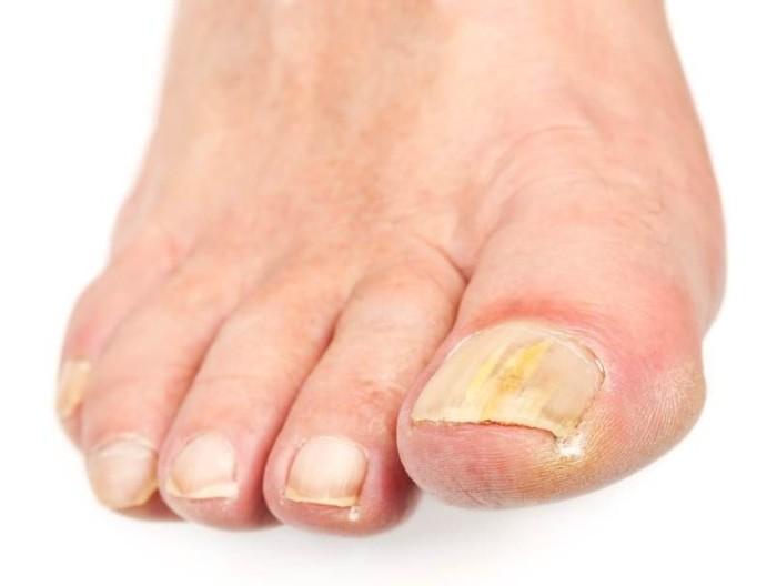 Средство для лечения грибка на пальцах ног