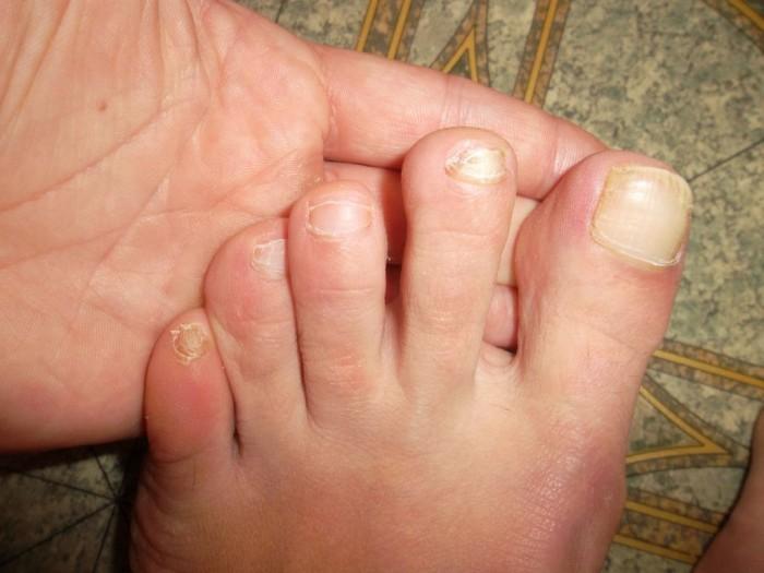 Лечим грибок на ногах быстро