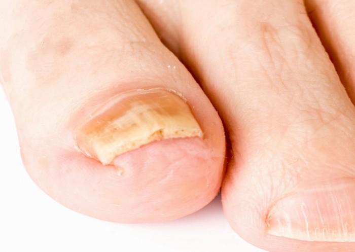 Лечим грибок ногтей быстро