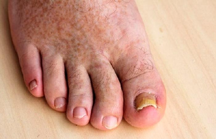 Длительность лечения грибка ногтя