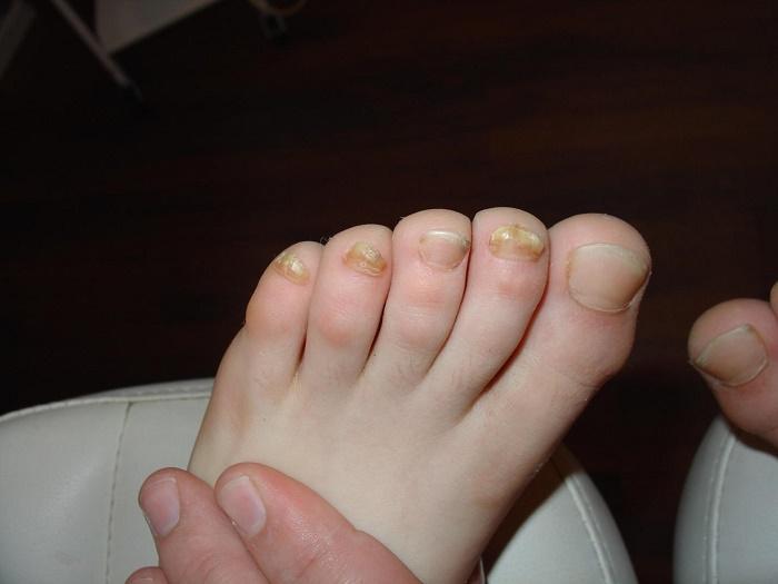 Грибок ногтей на ногах виды