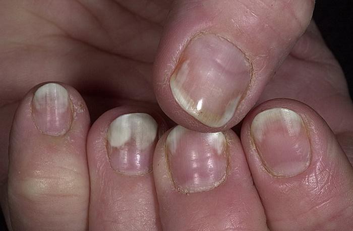 Грибок ногтей симптомы