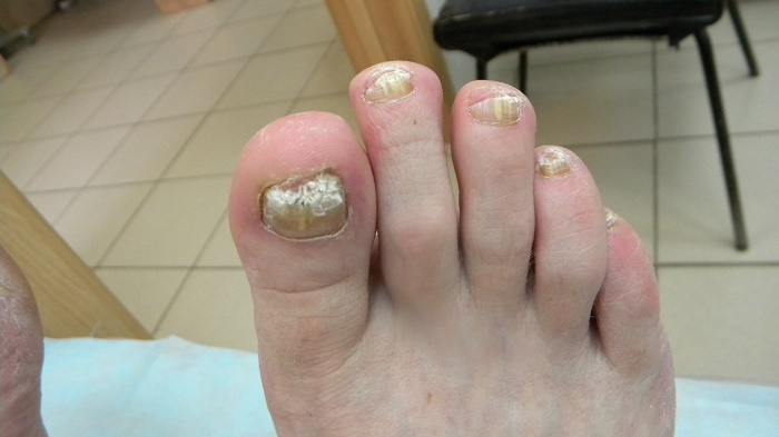Последствия грибка на ногах между пальцев